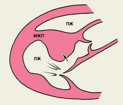 Біль в області серця, систолічний шум над аортою, аортальнийстеноз