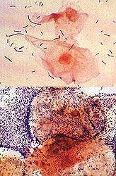 Дисбактеріоз піхви