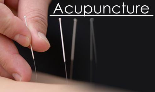 Акупунктура в лікуванні хребетної грижі
