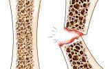 Остеопороз і харчування