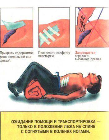 Перша допомога при вогнепальне поранення