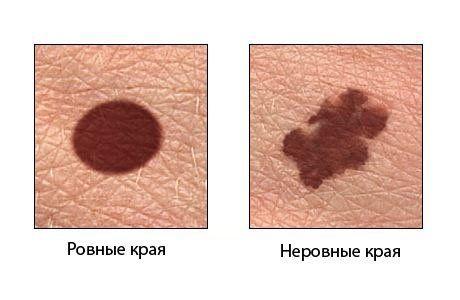 Симптоми меланоми