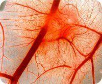 Синдром Вегенера (гранулематозно-некротичний системний васкуліт)